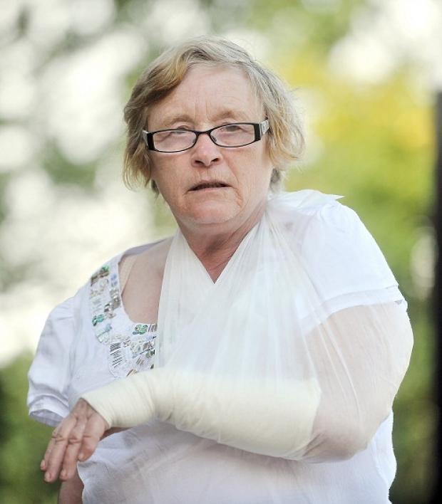 INJURED: Coun Val Langtree with her arm in a sling after the incident