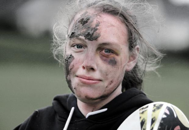 Craven Herald: A battered and bruised Mel Charldwood sporting a black eye